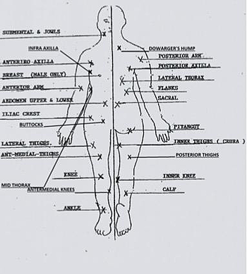 A diagram defining the areas open to liposculpture