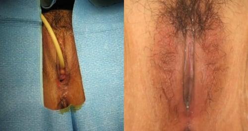 A patient undergoing LVR®