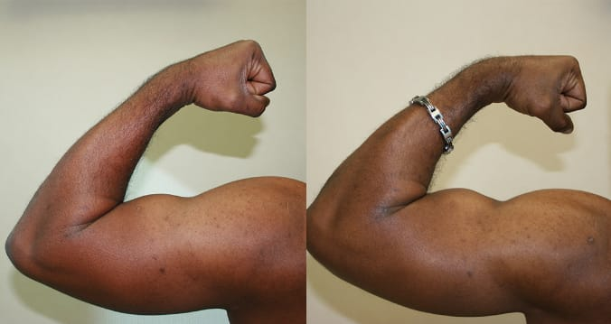 Advanced Surgical Bodybuilding® on the left arm