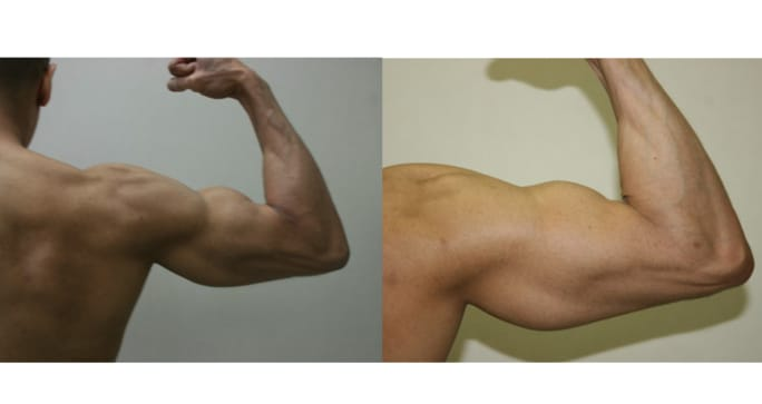 Advanced Surgical Bodybuilding® on the right arm