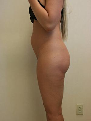 Patient 55