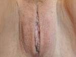 Patient 66