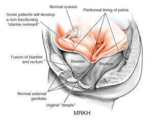 MRKH - Vaginal Agnesis