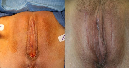 Labiaplasty of the Labia Majora via Vertical Horizontal Elliptical Excision