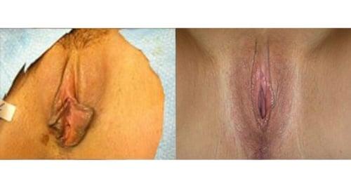 Result of Dr. Matlock's labiaplasty procedure