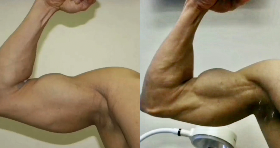 Advanced Surgical Bodybuilding®