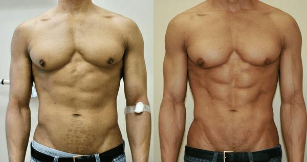Vaser Hi Def Liposuction