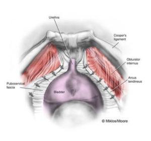 Laparoscopic Paravaginal Repair