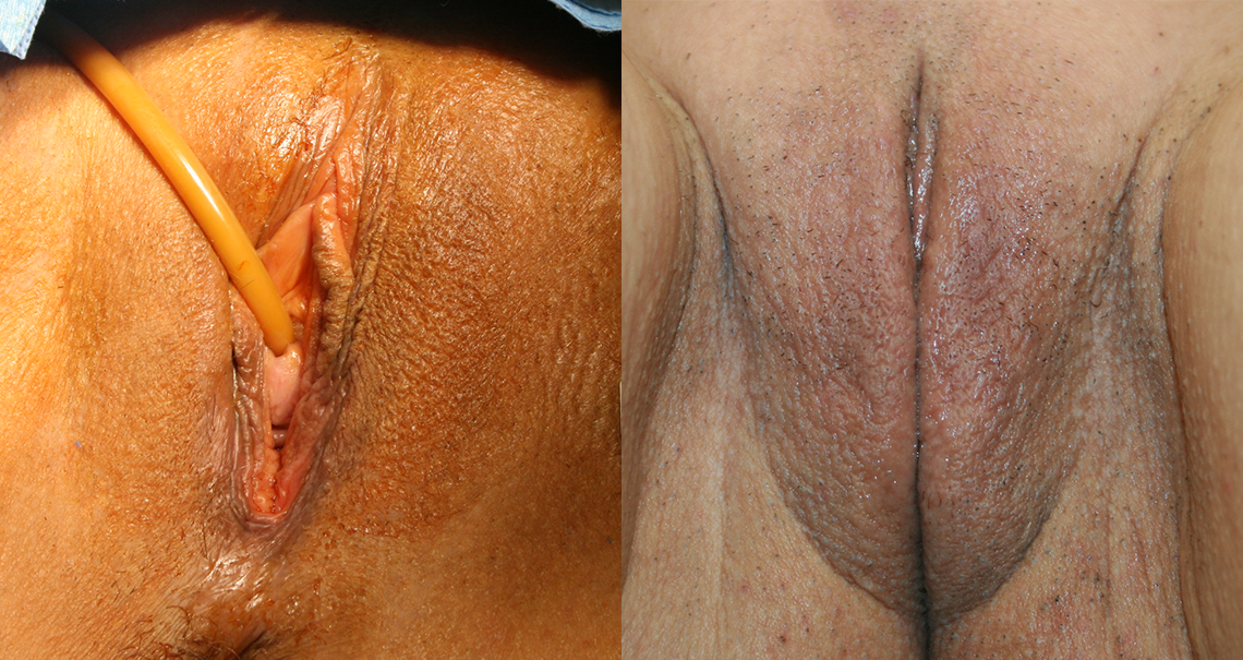Laser reduction labiaplasty of the labia minor with reduction of excess prepuce